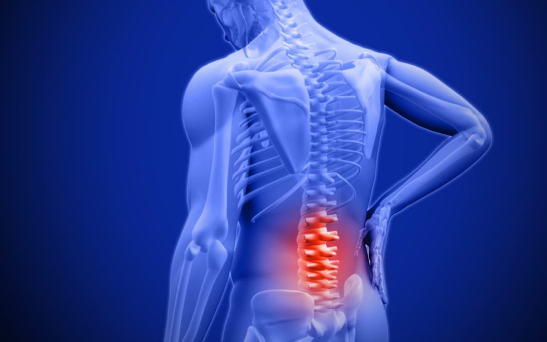 Low back pain? Is your lower back the criminal or victim?